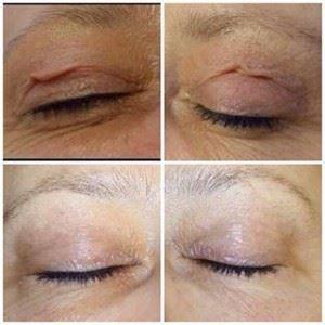 cirugia de parpados antes y despues 3