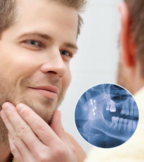 trauma-maxilofacial-cirugia