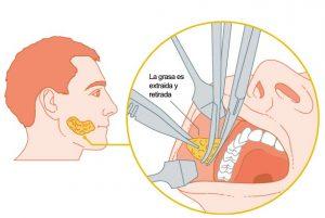 Bichectomia