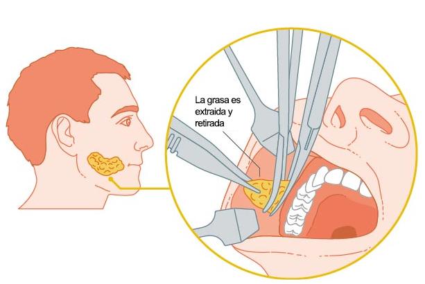 Bichectomía (Bolsas de Bichat) - Clinica de Cirugía Centurion