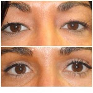 cirugia de parpados antes y despues 2