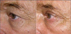 cirugia de parpados antes y despues 5